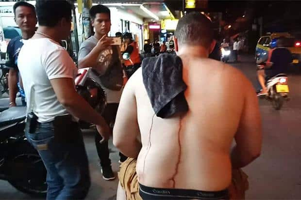 Tourist stabbed by two Thai men in Pattaya. A Lebanese tourist was wounded in a knife attack involving two Thai men during a brawl