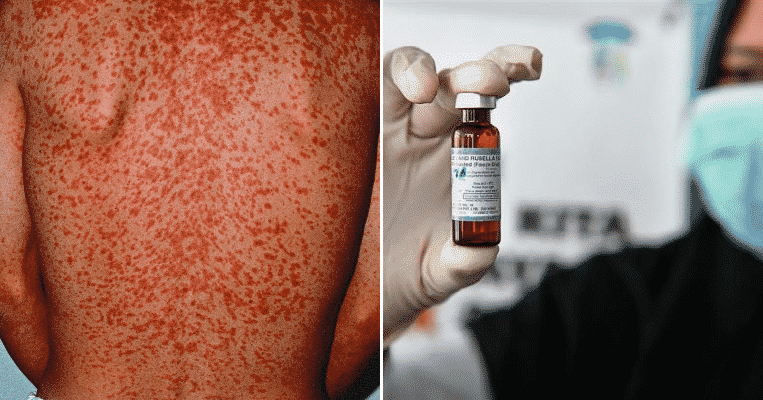 Measles Outbreak Reported in Thailand, Travellers