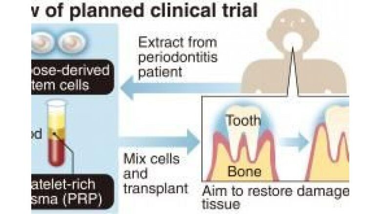 Stem cell treatment could reverse gum disease. A research team from Juntendo University and others is this month starting a clinical trial to