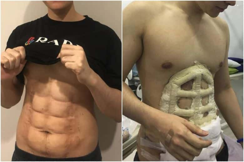 Instant 6 packs are here at last. Have you always wanted that perfect beach body but too lazy to go to the gym, well here is the answer:What do we think