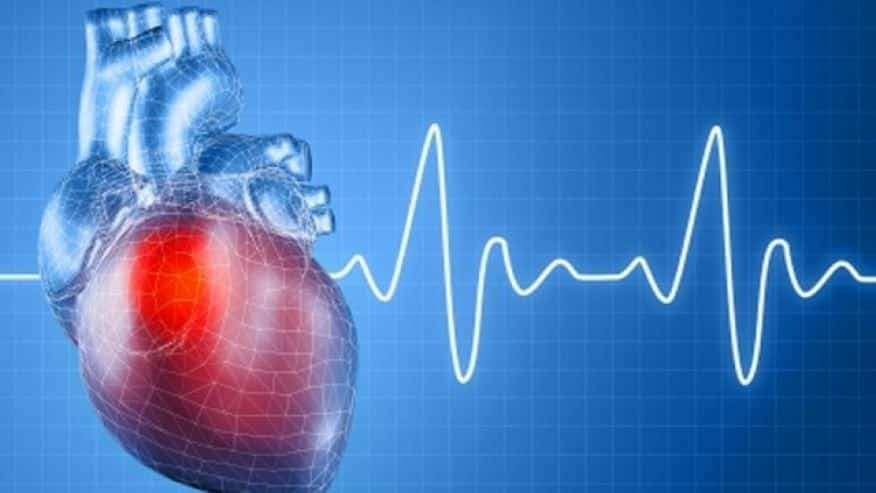 Should you book a heart scan?