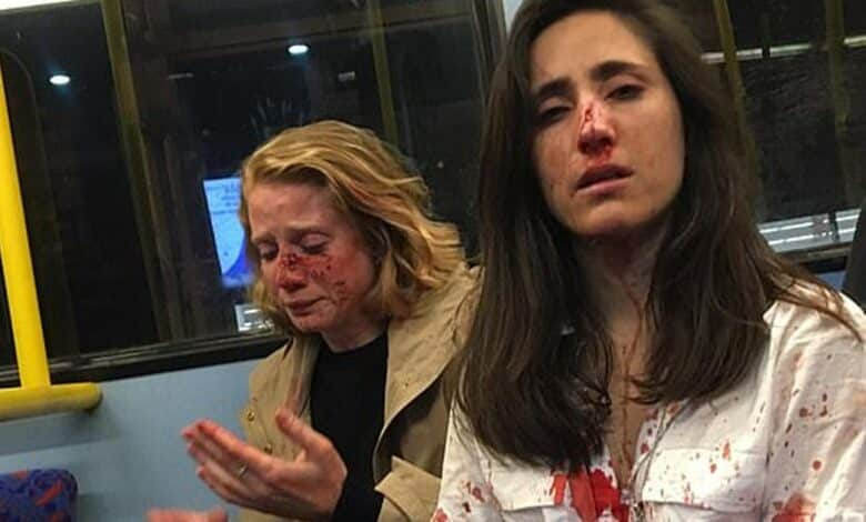 Lesbian Couple Attacked After Refusing To Kiss For Gang's Entertainment. A woman has spoken out about a horrifying attack she and her girlfriend were