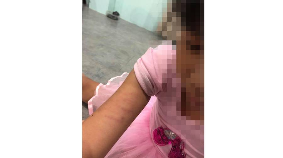 Child comes home with bruises from school.